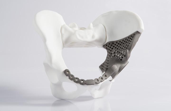 Personalizirani implantat zdjelice izrađen laserskim sinteriranjem od legure titana u zagrebačkoj tvornici Instrumentaria
